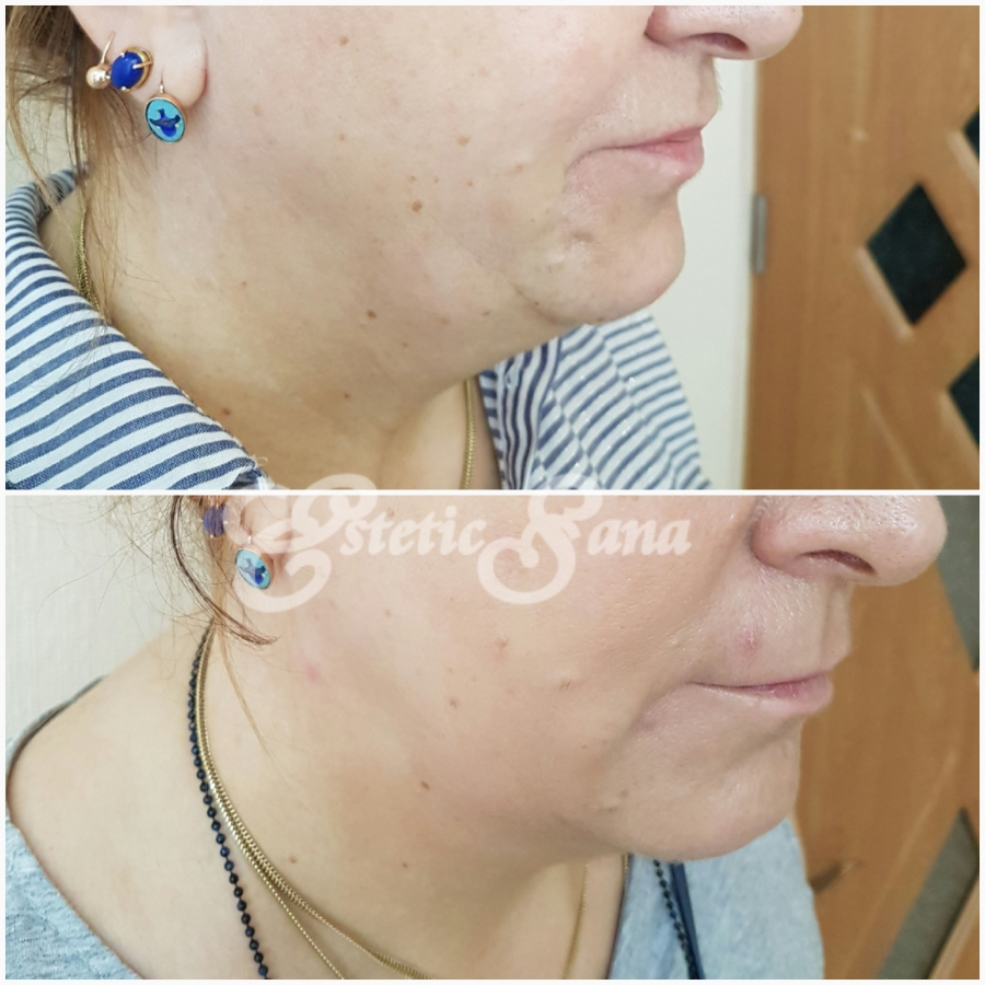 Lifting facial cu fire APTOS preț