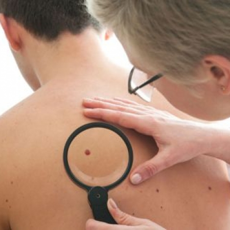 cavitație varicoseza pot exista amputare de la varicoză